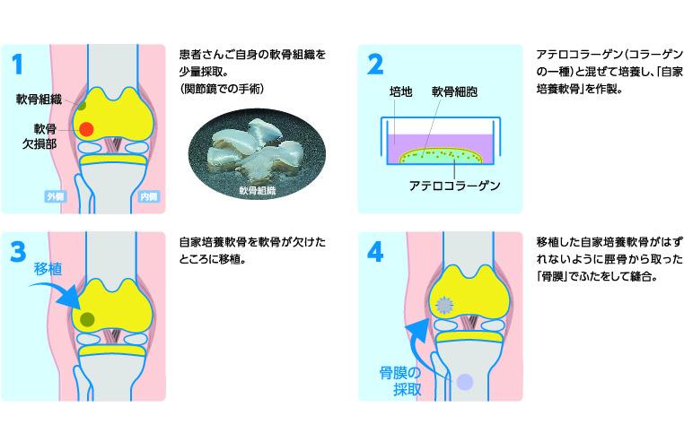 自家培養軟骨移植術の手順イメージ図