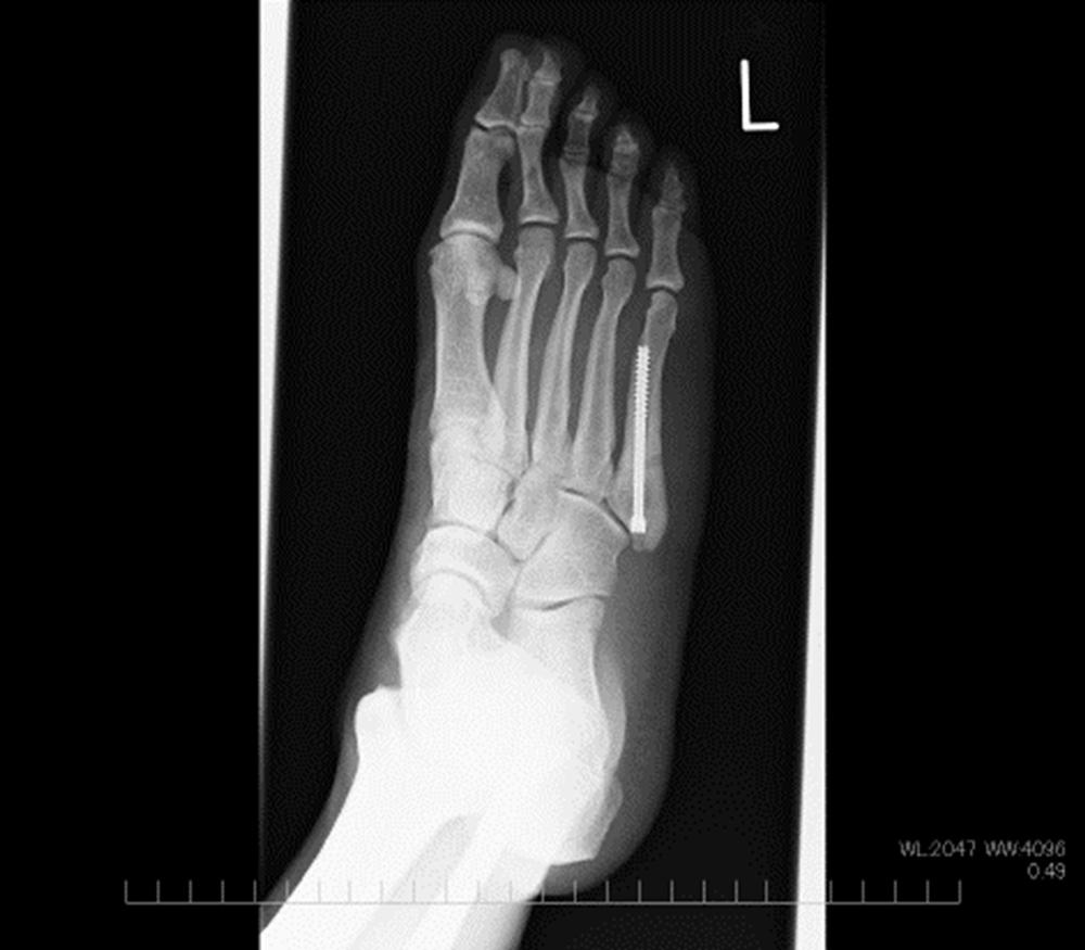 ジョーンズ骨折術後レントゲン像
