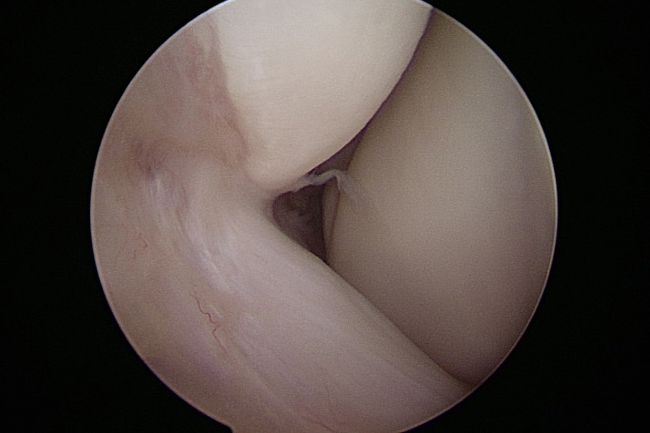 前距腓靭帯損傷 術中関節鏡視像